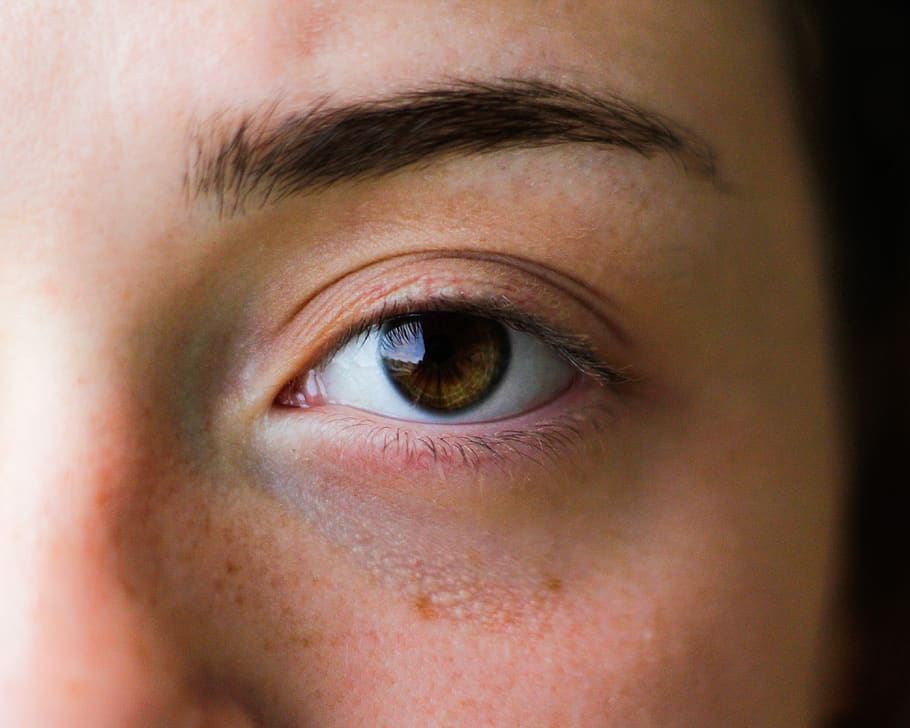 Dark Circles Under Eyes - Possible Causes and How to ...